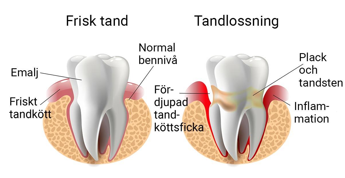 Tandläkare Västerås - tandlossning
